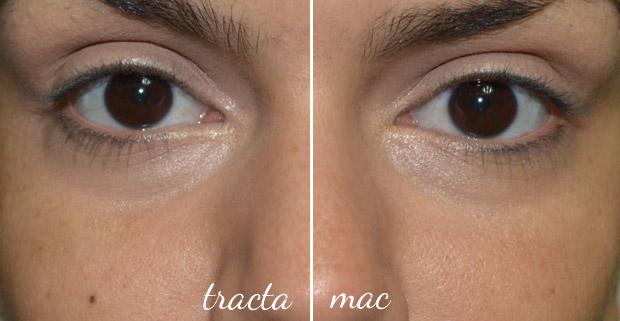 mactracta3